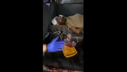 Hospitals In Punjab   Anmol Ngo Team Moga