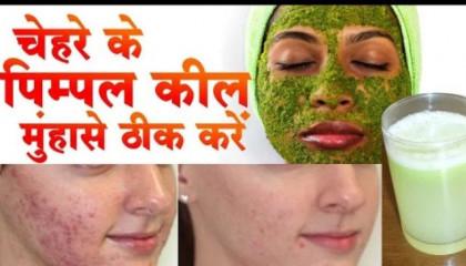 pimple ke gharelu upay चेहरे पर मोजूद पिम्पल कम कैसे करें  _ how to reduce pimpl